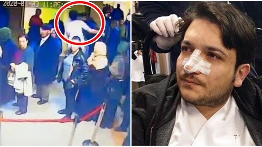 Kafa attığı doktorun burnunu kırdı!