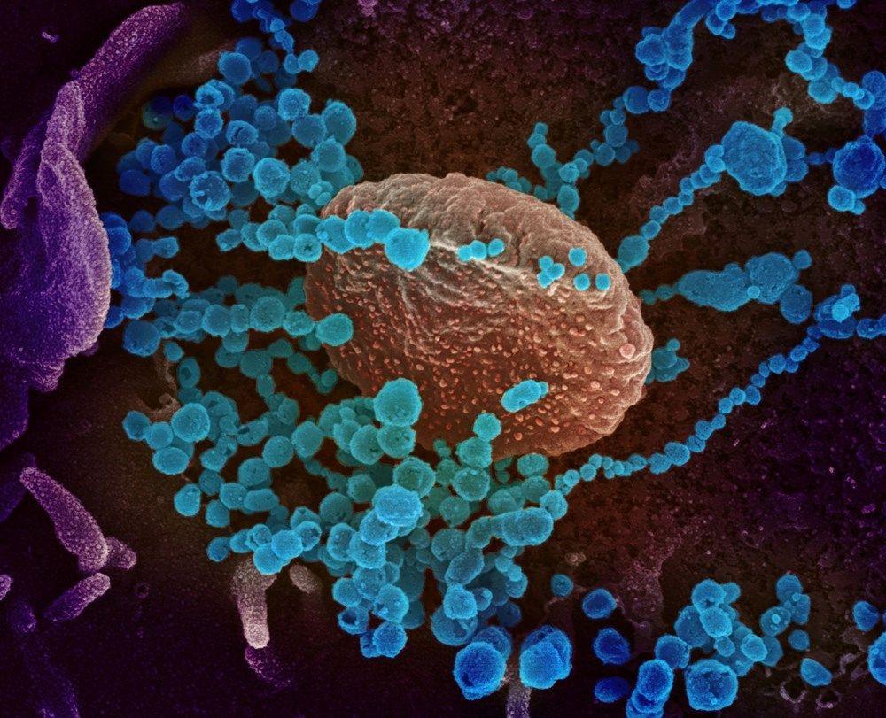 Korona virüsü hücreleri nasıl hasara uğratıyor?Adım adım görüntüler ABD laboratuarında kaydedildi! - Sayfa 2