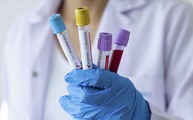 Dünyada koronavirüs vaka sayısı 900 bini aştı! - Sayfa 3