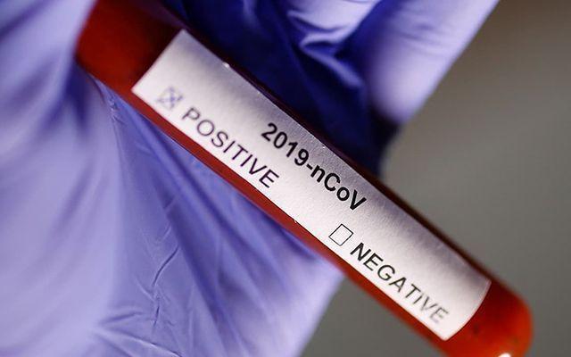 Dünyada koronavirüs vaka sayısı 900 bini aştı! - Sayfa 4