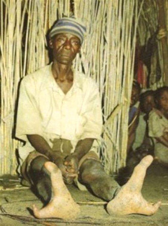 Zimbabwe'de yaşayan bu kabilenin sadece 2 ayak parmağı var ! - Sayfa 3