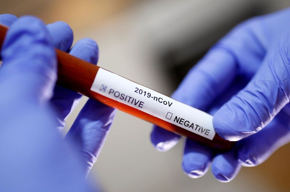 Koronavirüs hastaları neden koku kaybı yaşıyor? İşte bilim insanlarından bu araştırmanın yanıtı - Sayfa 1