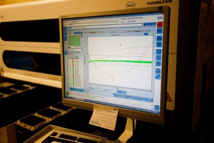 Görülmemiş hızla uzuyorlar! İşte Koronavirüsün yeni fotoğrafı - Sayfa 3