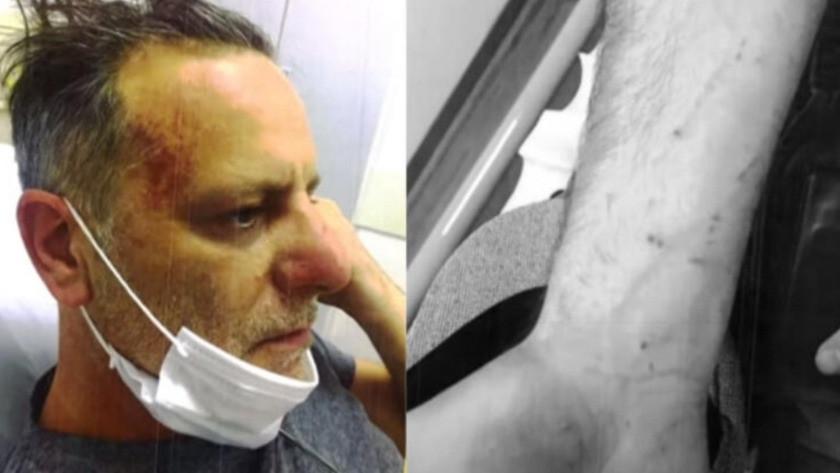 Ozan Güven'in kavga sonrası yeni fotoğrafları ortaya çıktı