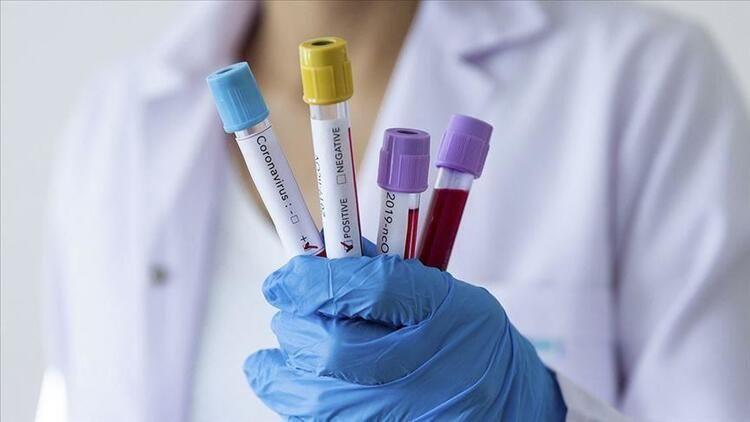Koronavirüsün yeni belirtisi ortaya çıktı! 4 gün boyunca geçmeyen... - Sayfa 4