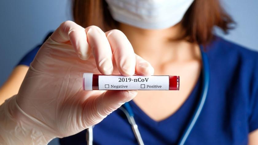 Bilim Kurulu Üyesi Prof. Dr. Taşova uyardı! Koronavirüsün bir belirtisi daha ortaya çıktı!