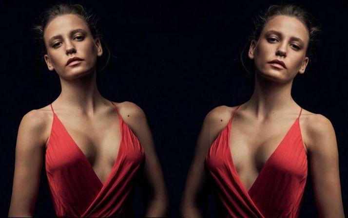 Göğüs silikonları patlayan Serenay Sarıkaya'nın estetik sonrası hali! - Sayfa 1