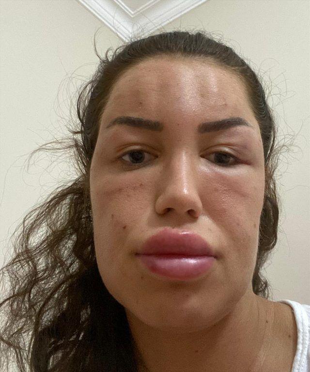 Bir estetik faciası daha! Gençlik aşısı yaptıran kadın tanınmaz hale geldi! - Sayfa 3