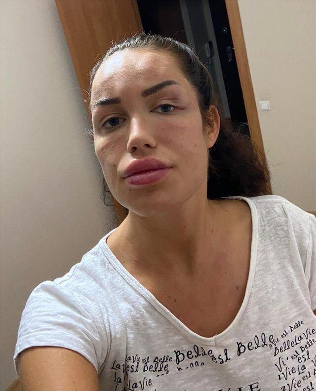 Bir estetik faciası daha! Gençlik aşısı yaptıran kadın tanınmaz hale geldi! - Sayfa 4