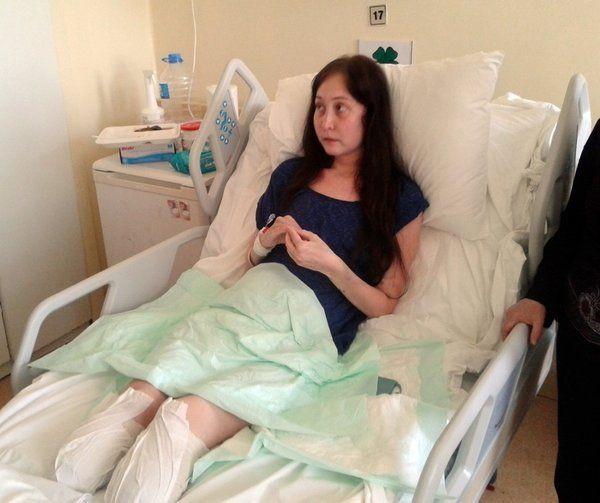 Hayatı kabusa döndü! Burun ameliyatı oldu, iki bacağı da kesildi... - Sayfa 4