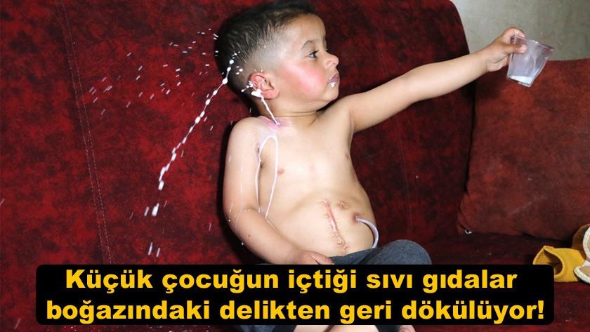 Küçük çocuğun içtiği sıvı gıdalar boğazındaki delikten geri dökülüyor!
