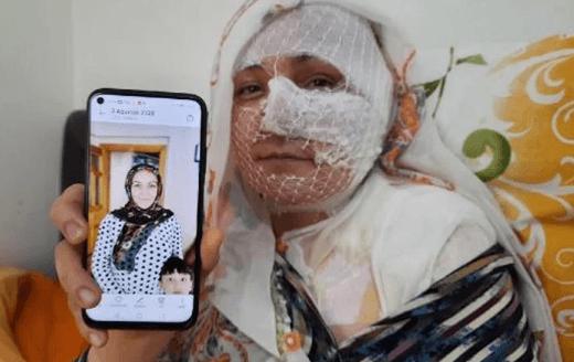 Diyarbakır'da eşini yakan korkunç koca! - Sayfa 1