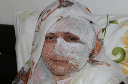 Diyarbakır'da eşini yakan korkunç koca! - Sayfa 3