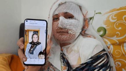 Diyarbakır'da eşini yakan korkunç koca! - Sayfa 4