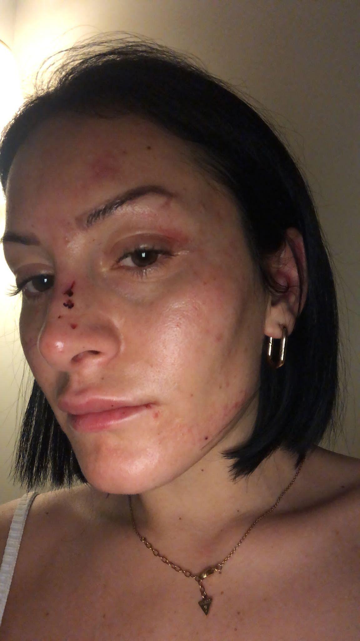 5 polisin darp ettiği kadının ifadesi ortaya çıktı! Şoke eden tehdit - Sayfa 3