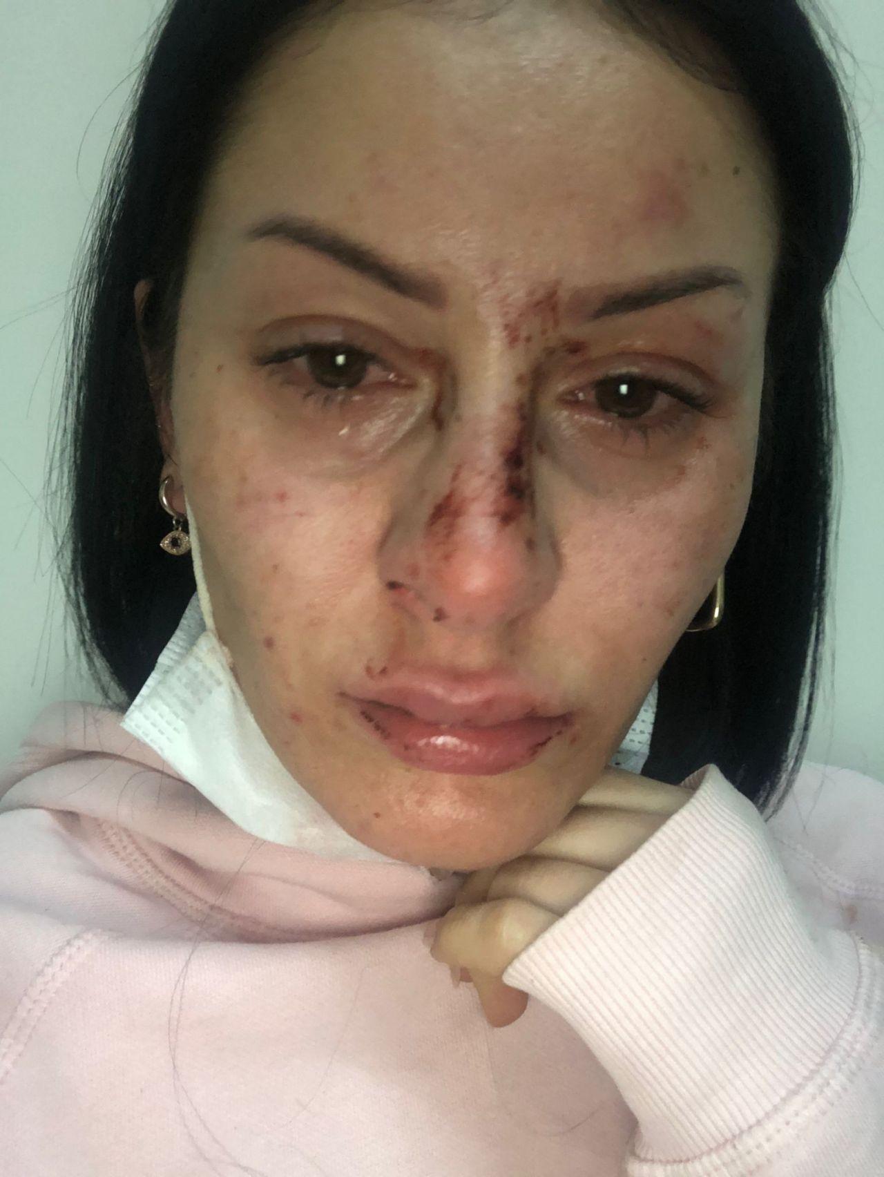5 polisin darp ettiği kadının ifadesi ortaya çıktı! Şoke eden tehdit - Sayfa 4