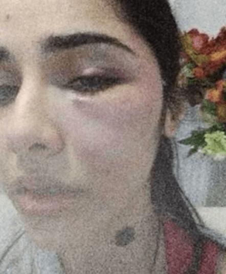 """İstanbul'da boşanma aşamasındaki eşin vahşeti: """"Gözlerimi kapatıp şehadet getirdim"""" - Sayfa 2"""