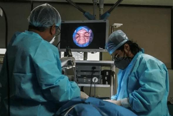 İşte kara mantar ameliyatı: Gözler böyle oyuluyor - Sayfa 4