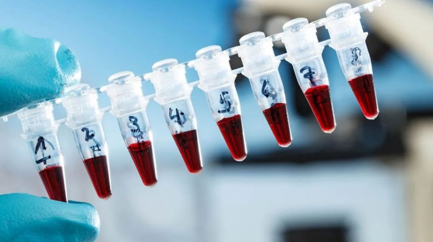 """""""PCR testi"""" dönemi başlıyor! Hangi alanlarda zorunlu olacak? İşte ayrıntılar... - Sayfa 1"""