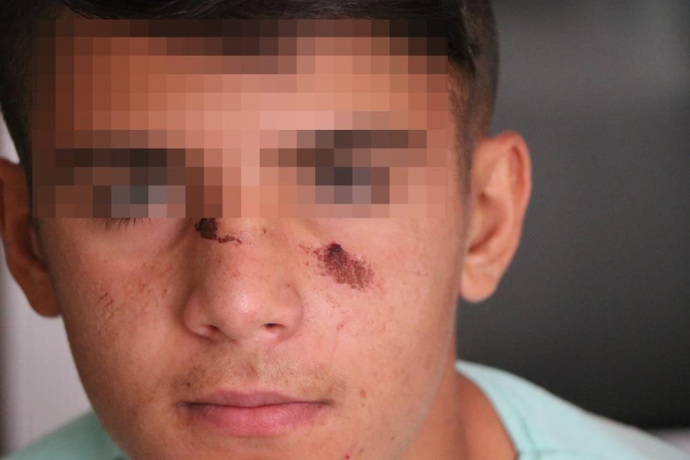 Kız kardeşinin paylaştığı videoda gördüğü çocuğu tekme tokat öldüresiye dövdü - Sayfa 4