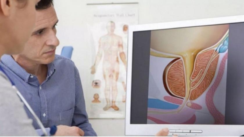 Prostat tedavisi cinsel sorunlara yol açıyor