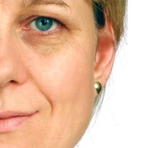 Yüz ve boyun bölgesindeki sarkmalara son veren uygulama - Sayfa 1